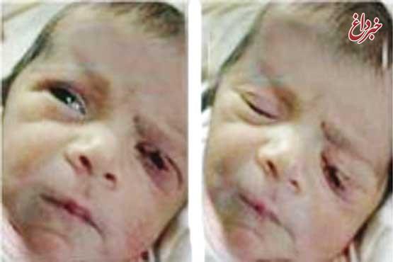 پارگی پلک نوزاد نطنزی، قصور پزشکی بود؟